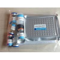 Wholesale Human Prothrombin(PT) ELISA Kit from china suppliers