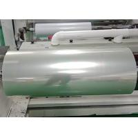 Hospital printing Screen Printing Film for Colour Doppler Ultrasound / CT results for sale