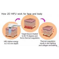 Hifu high intensity focused ultrasound hifu 3d Europe CE approval