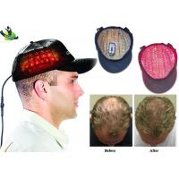 Portable 276 Diodes Laser Hair Growth Cap For Hair Loss Laser Therapy 20-25 Minute